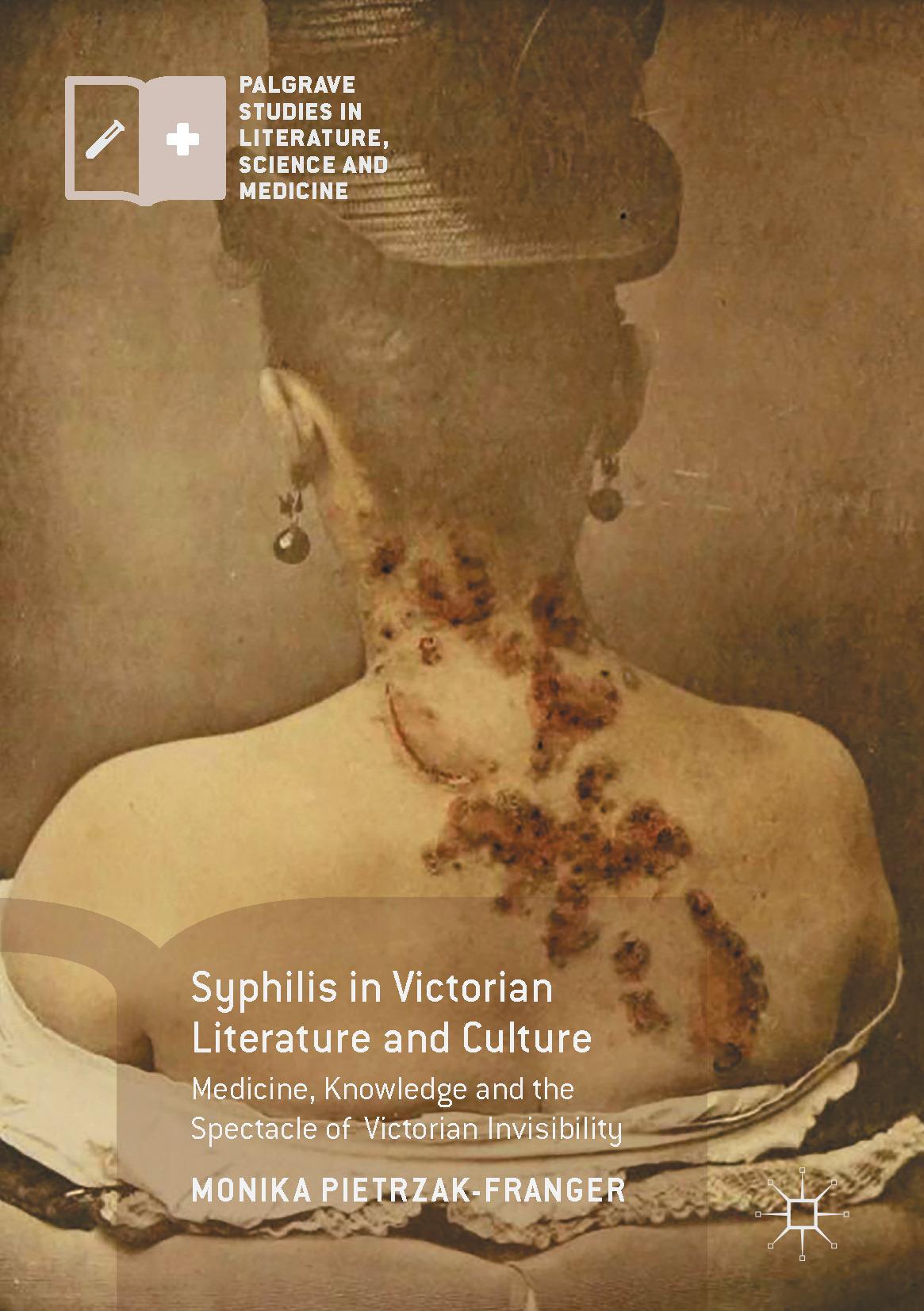 Pietrzak-Franger, Monika - Syphilis in Victorian Literature and Culture, ebook