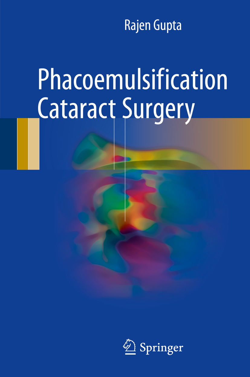 Gupta, Rajen - Phacoemulsification Cataract Surgery, ebook