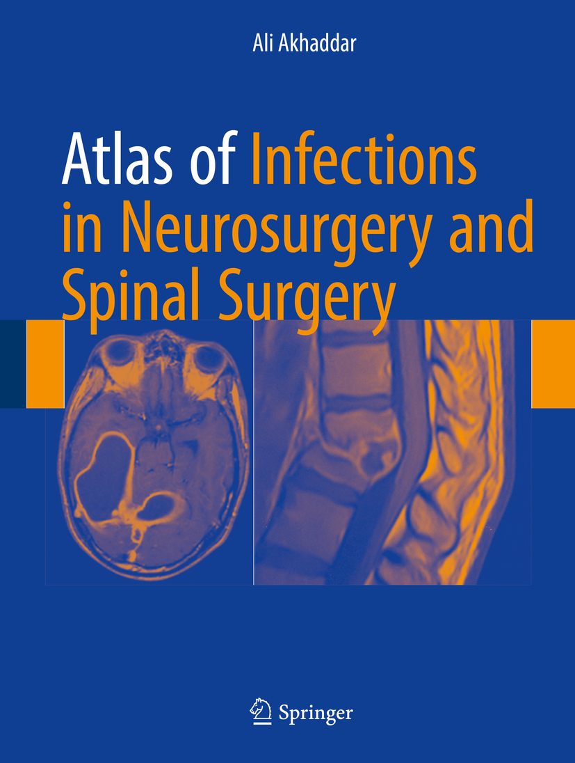 Akhaddar, Ali - Atlas of Infections in Neurosurgery and Spinal Surgery, ebook