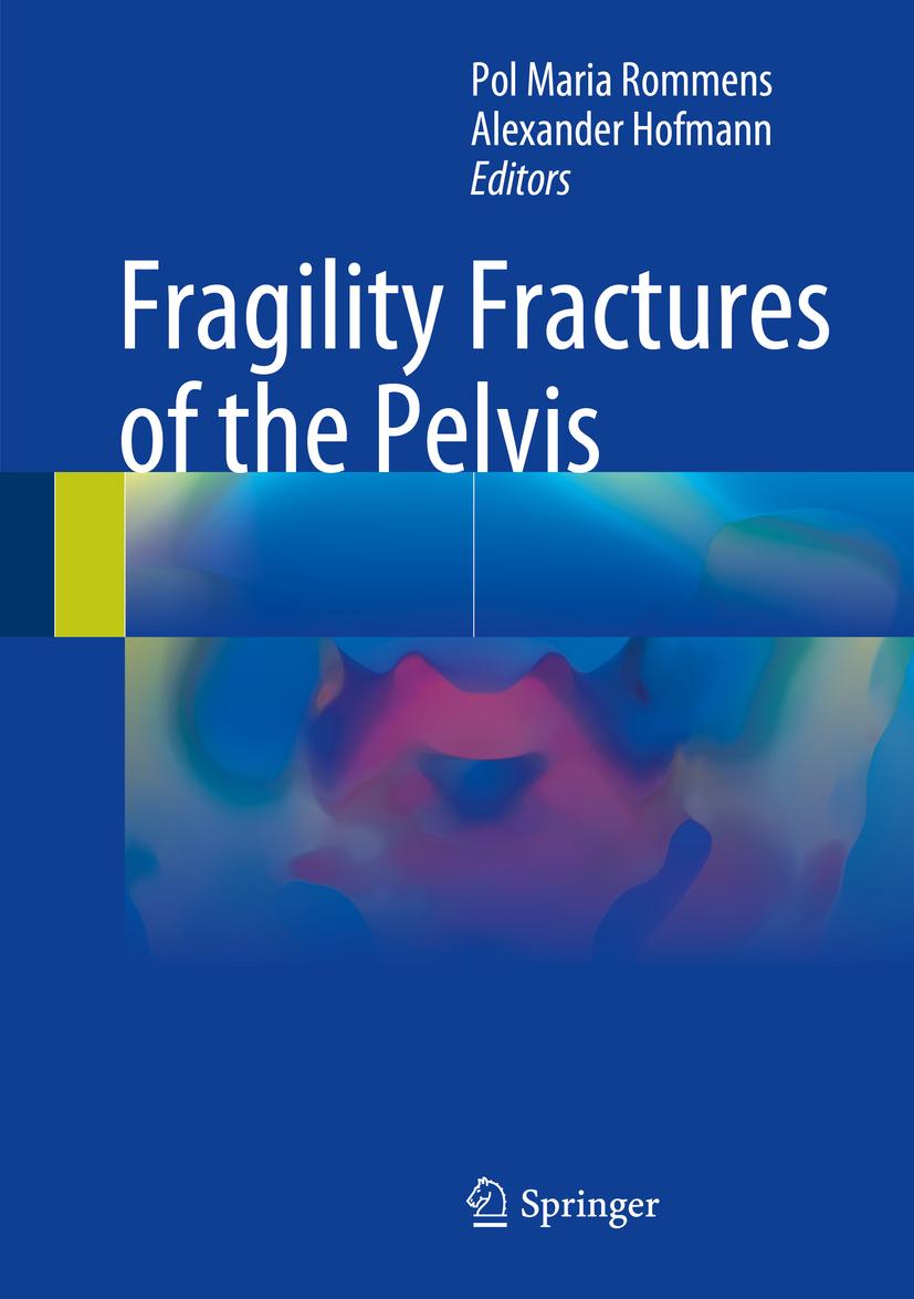 Hofmann, Alexander - Fragility Fractures of the Pelvis, ebook
