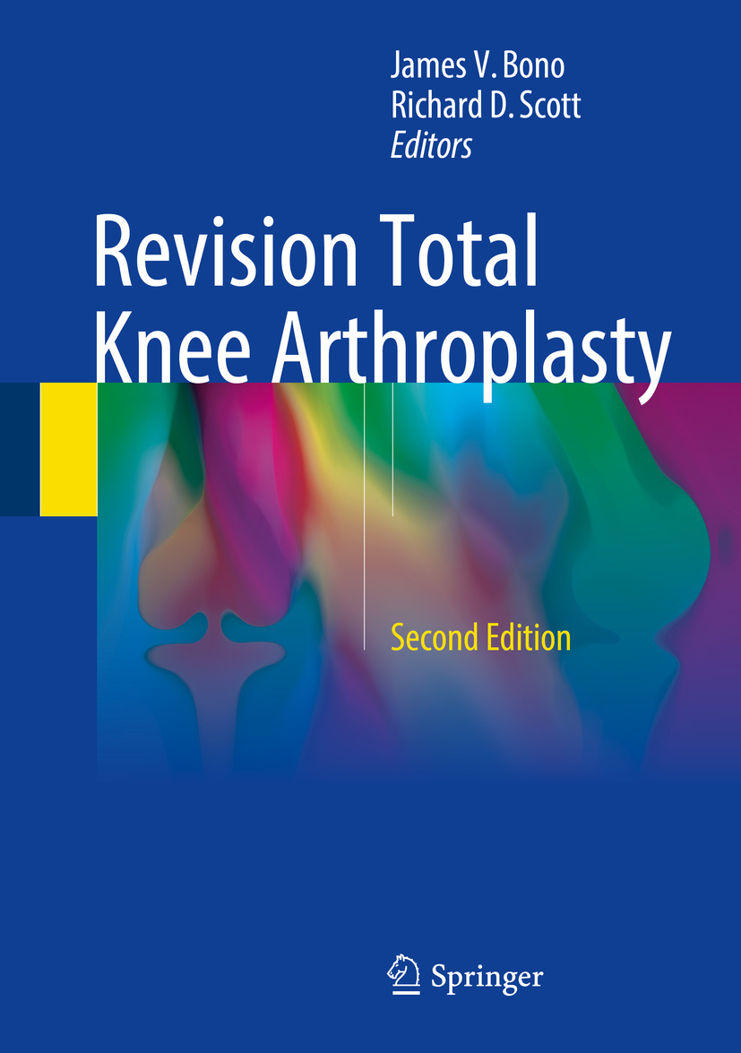 Bono, James V. - Revision Total Knee Arthroplasty, e-kirja