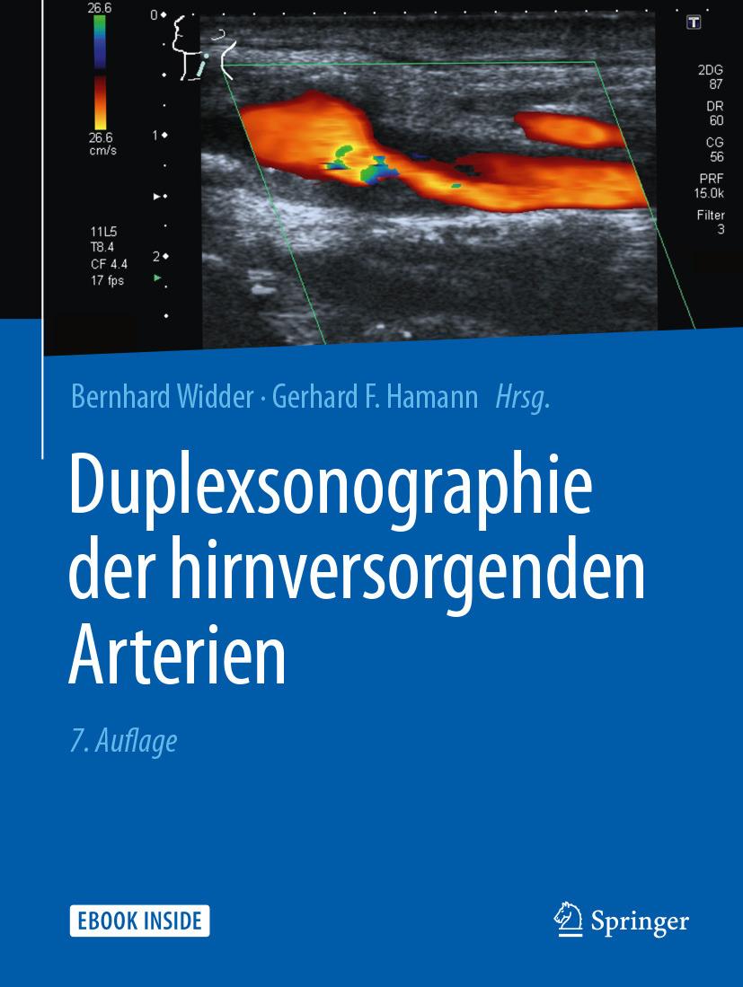 Hamann, Gerhard F. - Duplexsonographie der hirnversorgenden Arterien, ebook