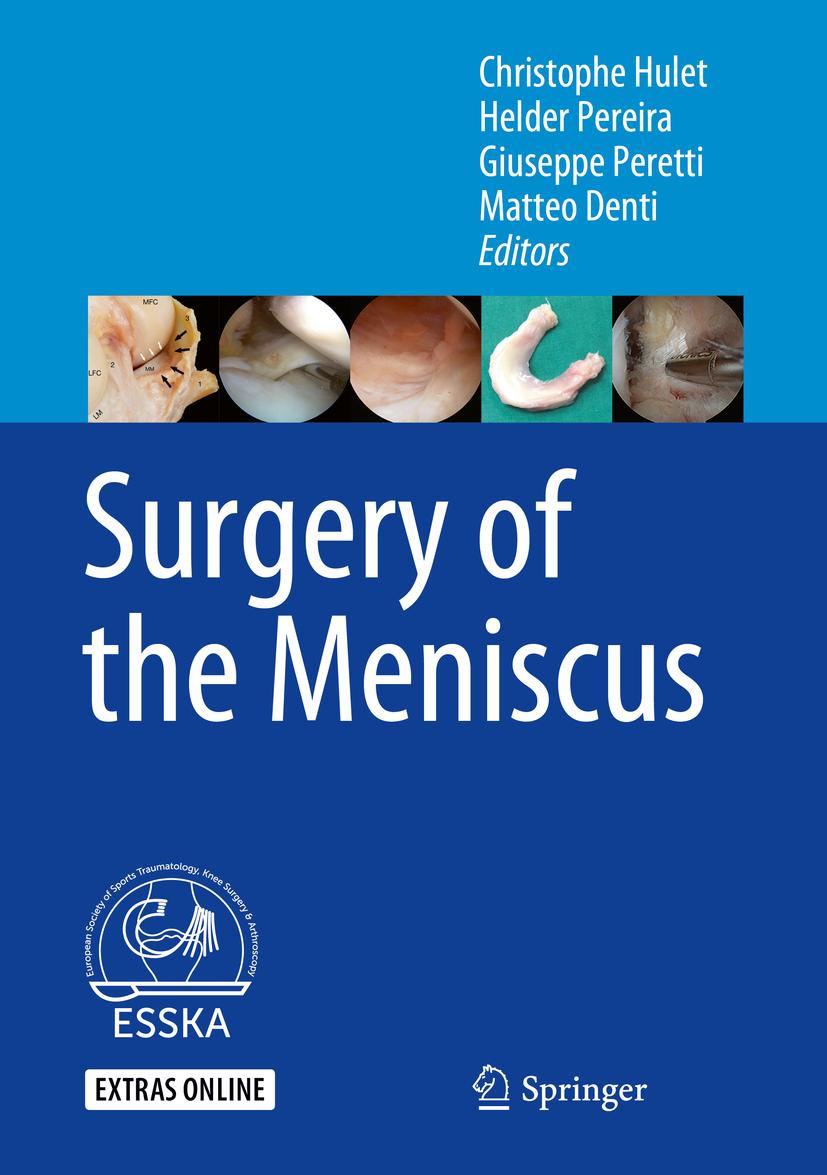 Denti, Matteo - Surgery of the Meniscus, e-kirja