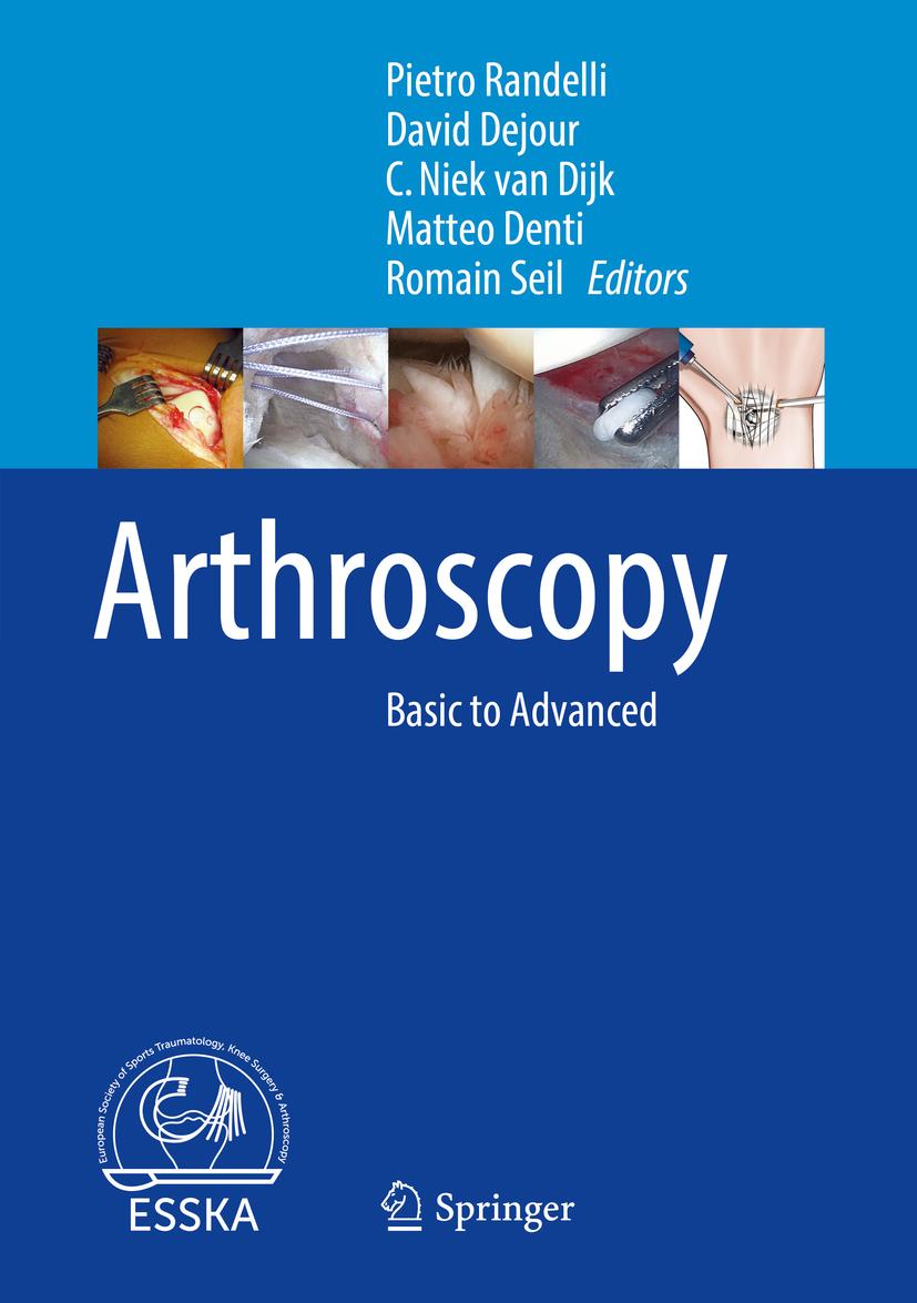 Dejour, David - Arthroscopy, e-bok
