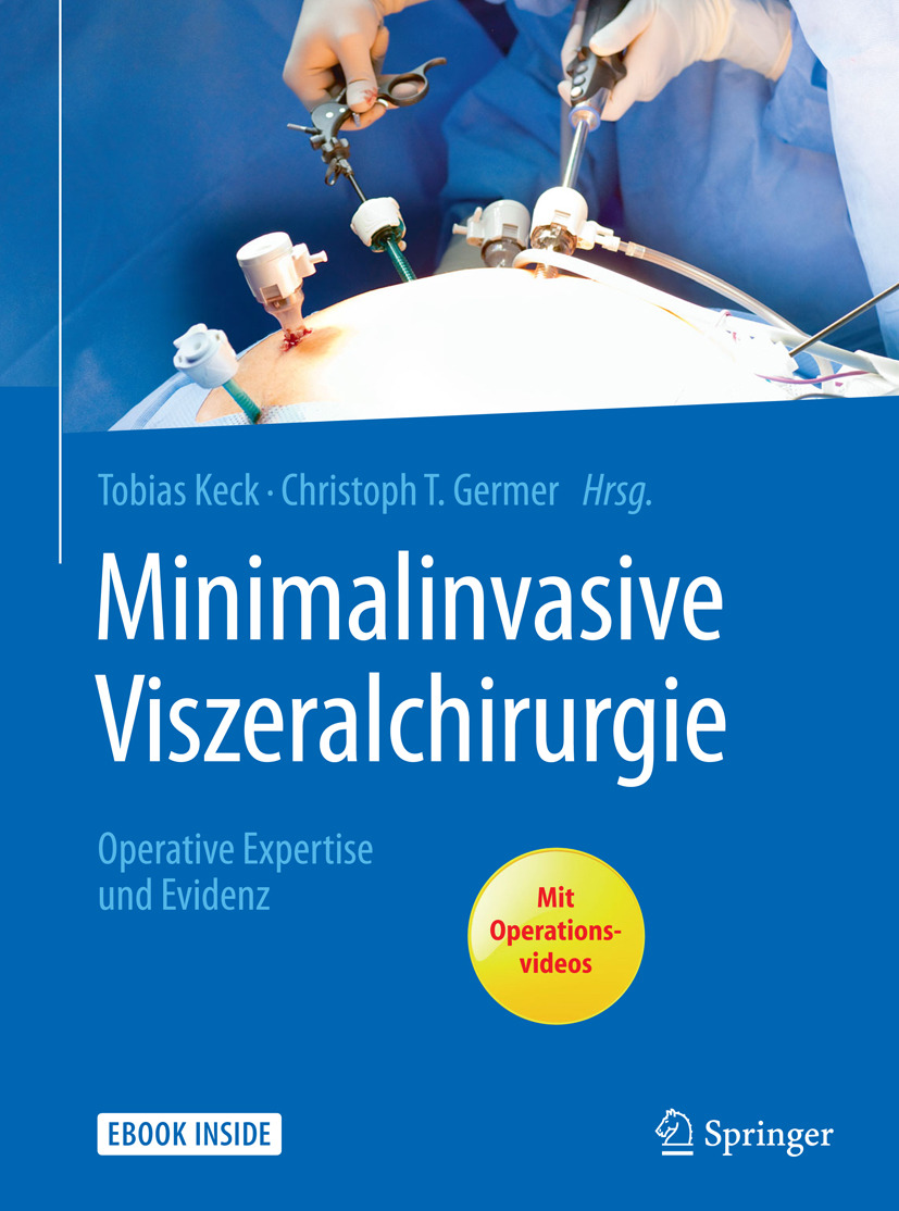 Germer, Christoph T. - Minimalinvasive Viszeralchirurgie, ebook