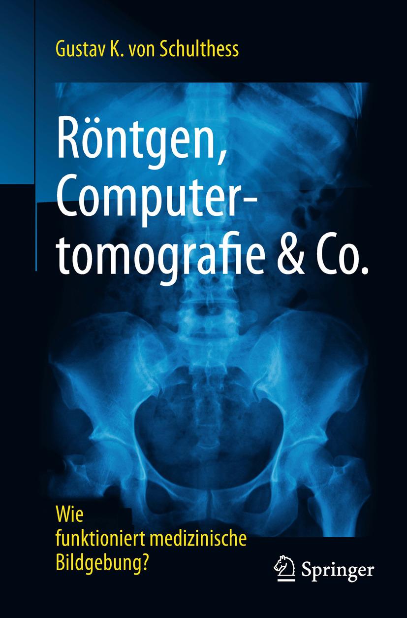 Schulthess, Gustav K. - Röntgen, Computertomografie & Co., ebook
