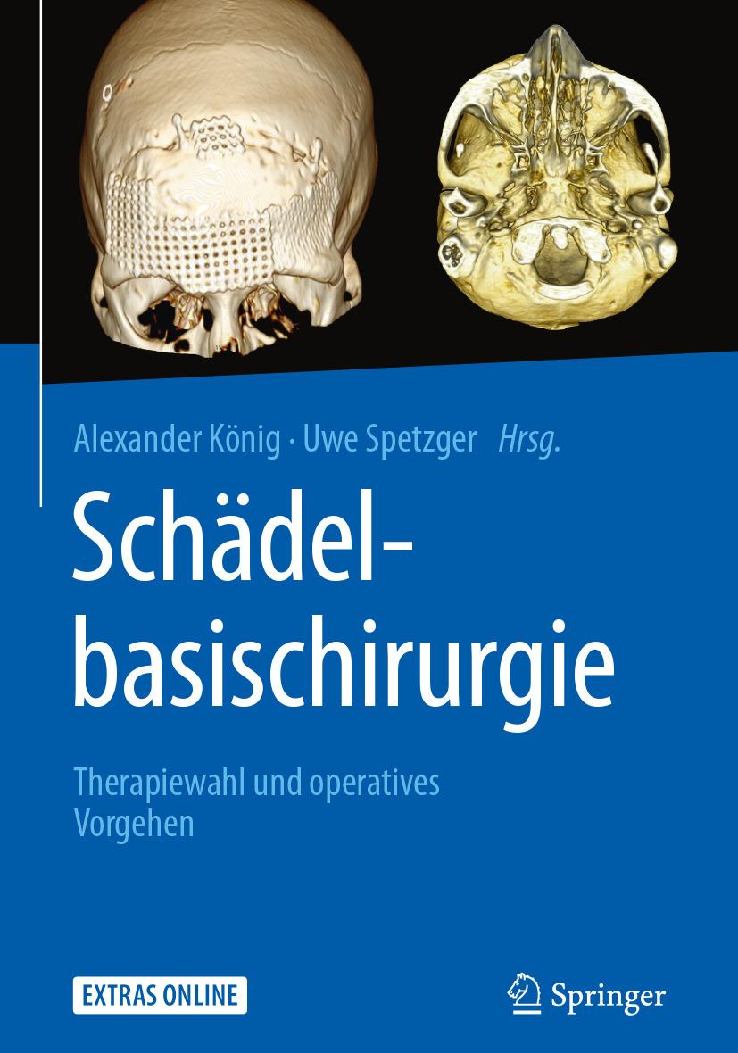 König, Alexander - Schädelbasischirurgie, ebook