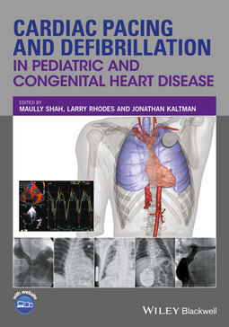Kaltman, Jonathan - Cardiac Pacing and Defibrillation in Pediatric and Congenital Heart Disease, ebook