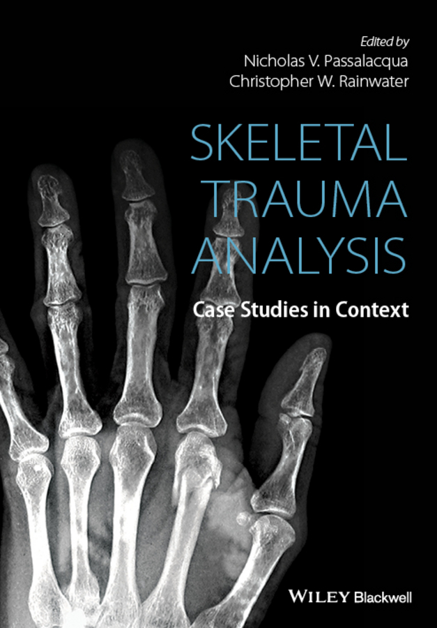 Passalacqua, Nicholas V. - Skeletal Trauma Analysis: Case Studies in Context, e-kirja