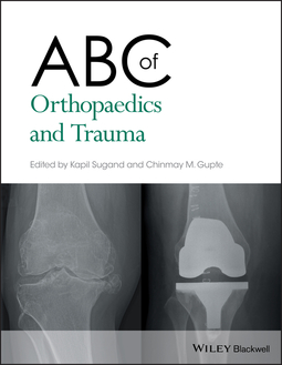 Gupte, Chinmay M. - ABC of Orthopaedics and Trauma, ebook