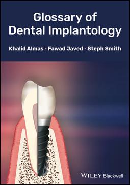 Almas, Khalid - Glossary of Dental Implantology, ebook