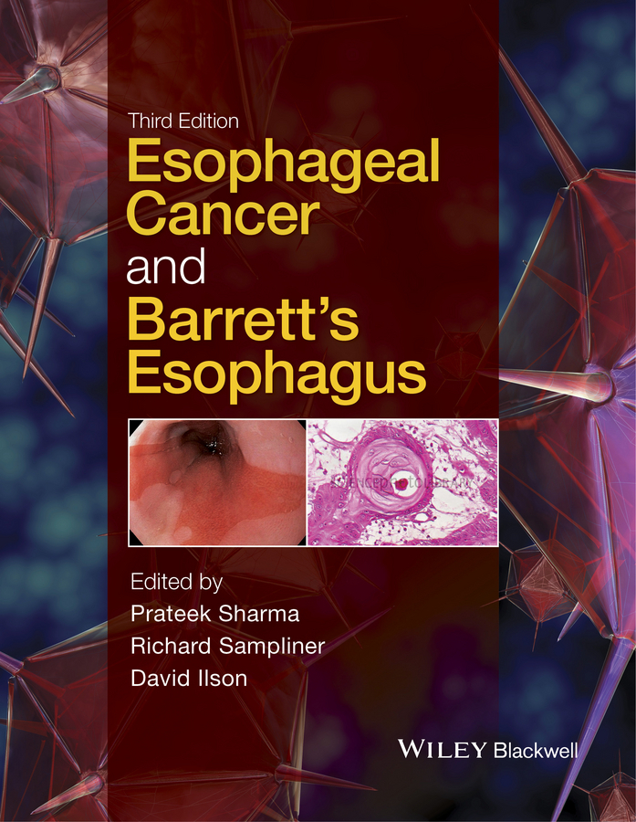 Ilson, David - Esophageal Cancer and Barrett's Esophagus, ebook