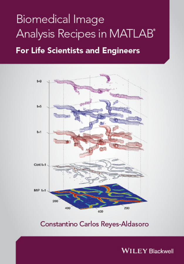 Reyes-Aldasoro, Constantino Carlos - Biomedical Image Analysis Recipes in MATLAB: For Life Scientists and Engineers, ebook