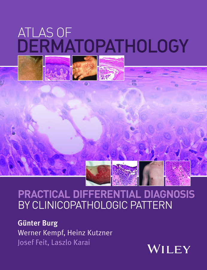 Burg, Gunter - Atlas of Dermatopathology: Practical Differential Diagnosis by Clinicopathologic Pattern, ebook