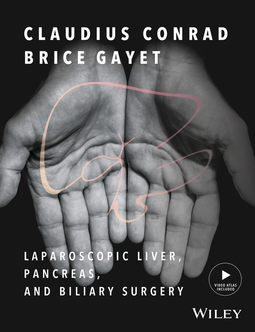 Conrad, Claudius - Laparoscopic Liver, Pancreas, and Biliary Surgery, Enhanced Edition: Textbook and Illustrated Video Atlas, ebook