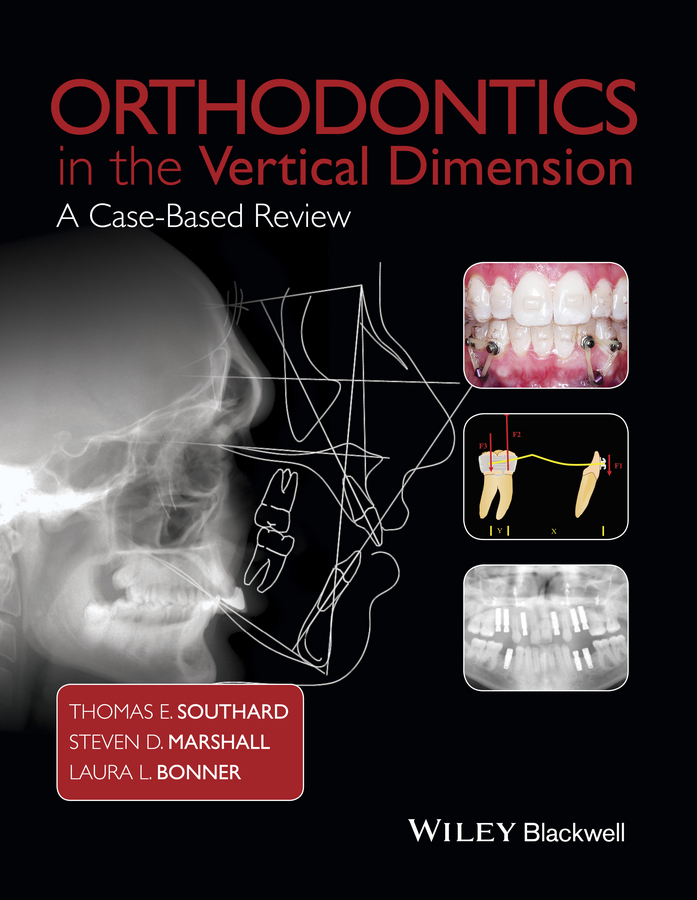 Bonner, Laura L. - Orthodontics in the Vertical Dimension: A Case-Based Review, ebook