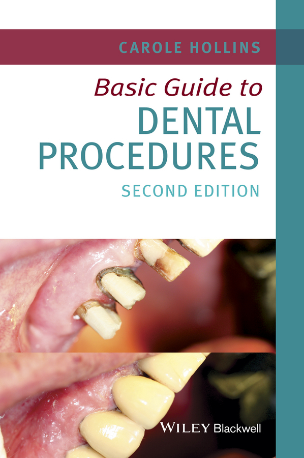 Hollins, Carole - Basic Guide to Dental Procedures, ebook