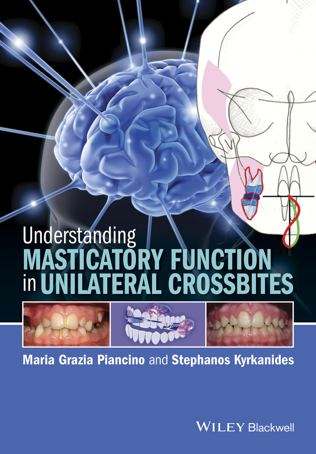 Kyrkanides, Stephanos - Understanding Masticatory Function in Unilateral Crossbites, ebook