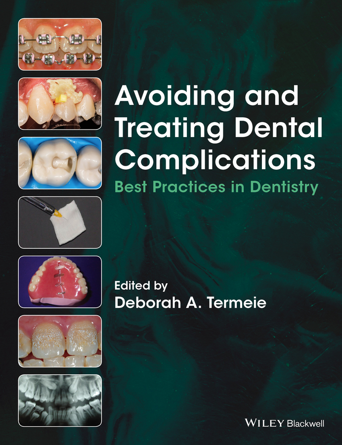 Termeie, Deborah A. - Avoiding and Treating Dental Complications: Best Practices in Dentistry, ebook