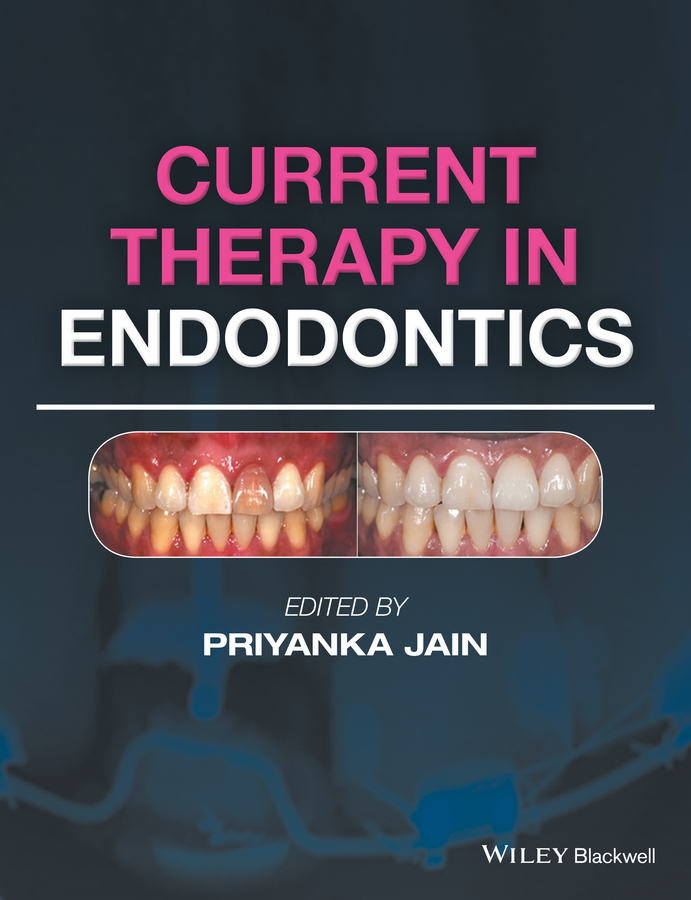 Jain, Priyanka - Current Therapy in Endodontics, ebook