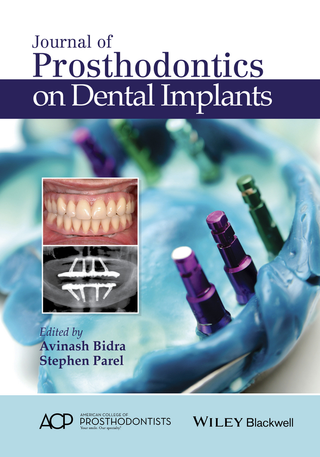Parel, Stephen M. - Journal of Prosthodontics on Dental Implants, ebook