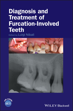 Nibali, Luigi - Diagnosis and Treatment of Furcation-Involved Teeth, e-kirja