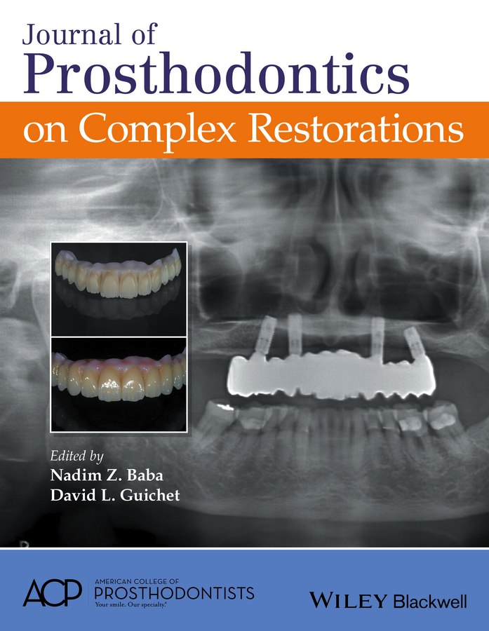 Baba, Nadim Z. - Journal of Prosthodontics on Complex Restorations, ebook