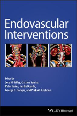 Conde, Ian Del - Endovascular Interventions, ebook