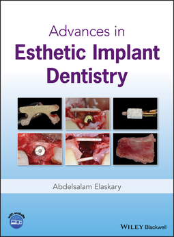 Elaskary, Abdelsalam - Advances in Esthetic Implant Dentistry, ebook