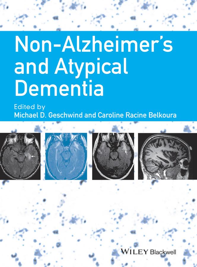 Belkoura, Caroline Racine - Non-Alzheimer's and Atypical Dementia, ebook