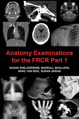 Shelmerdine, Susan - Anatomy Examinations for the FRCR Part 1, ebook